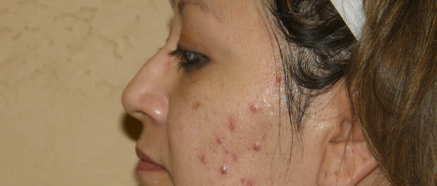 Excoriated Acne